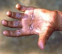 Nuovo manuale per la diagnosi precoce della lebbra